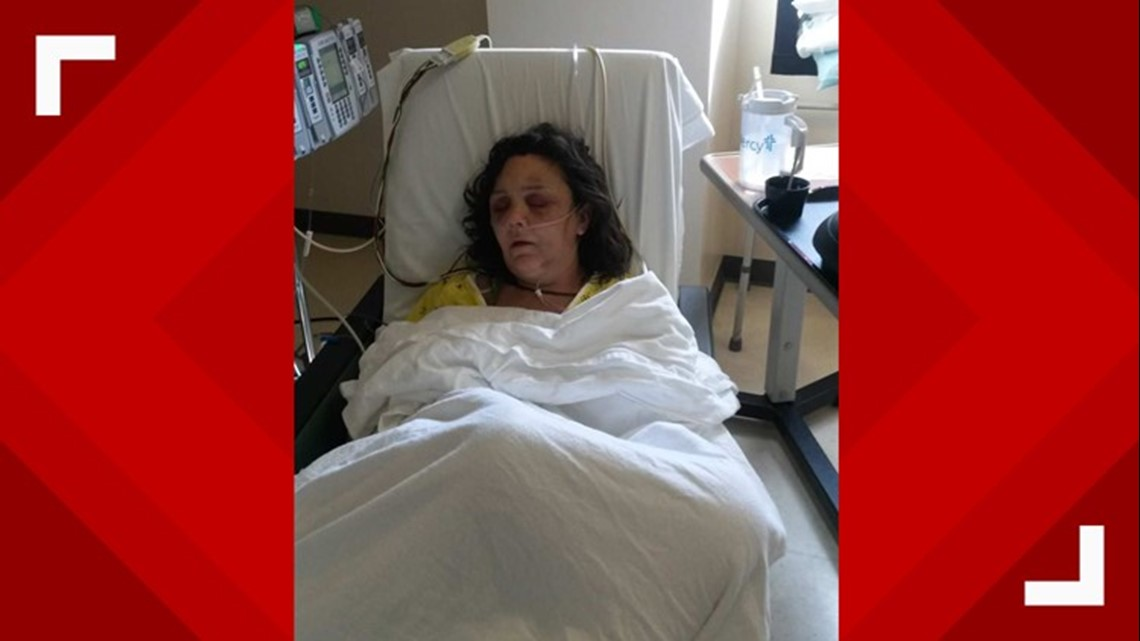 'I got very, very lucky' | Woman describes being beaten and left to die by ex-boyfriend