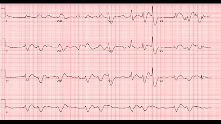 Repeat electrocardiogram showing disorganized rhythm, peri-arrest.