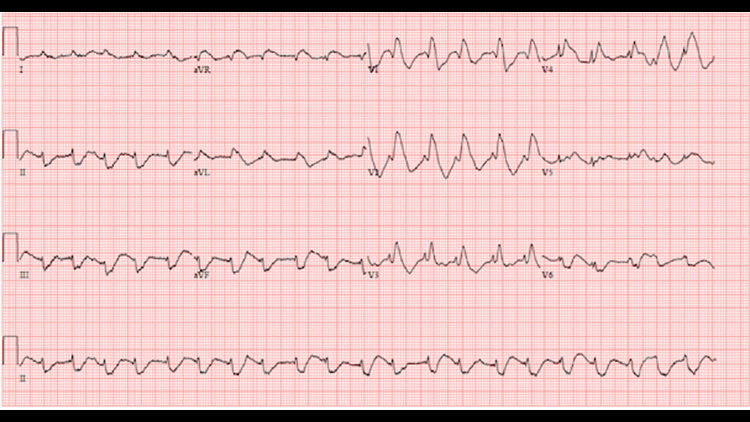 Initial electrocardiogram demonstrating wide-complex tachycardia