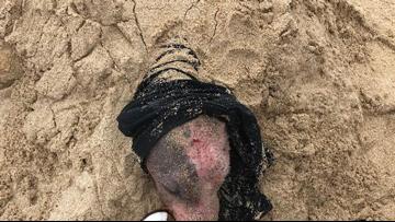 Sunburned, injured dog rescued after being buried alive