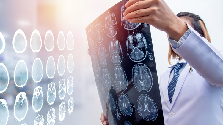 Michigan Auto Law calls attention to traumatic brain injuries, most of which are caused by auto accidents
