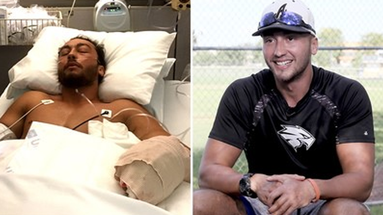 Baseball player throws again after losing hand in lawnmower accident