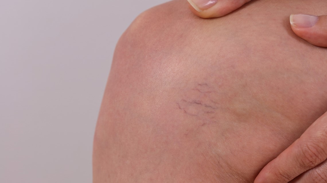 Get treatment for varicose and spider veins at Spectrum Health Medical Group Vein Center