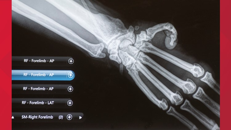 Susie's X-ray