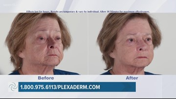 Plexaderm can help reduce eye bags in minutes