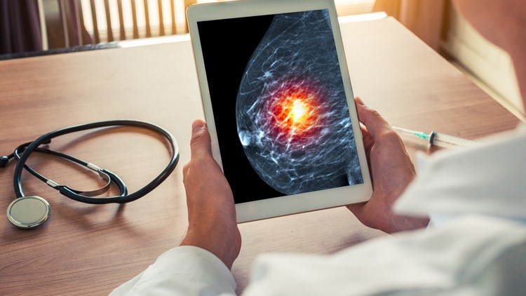 Mastectomy doesn't have to be your first choice