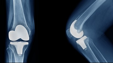 Orthopaedic Associates of Muskegon: New technology to improves joint replacement surgery