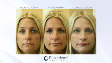 Get rid of wrinkles, crow's feet and other signs of aging with Plexaderm