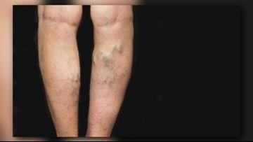 Spectrum Health helps treat your varicose and spider veins