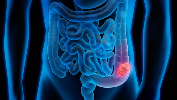 Colon cancer on the increase for young men