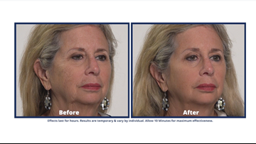 Reduce eye bags in minutes with Plexaderm