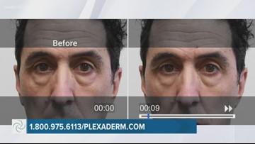 The Exchange: Plexaderm