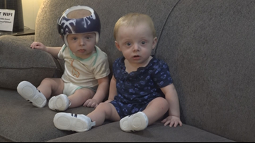 Twin baby graduates from helmet at Mary Free Bed