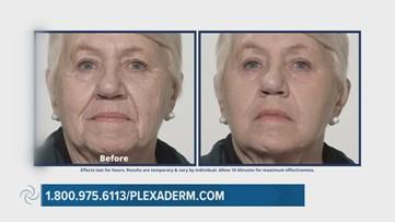 Plexaderm can help reduce eye bags in minutes